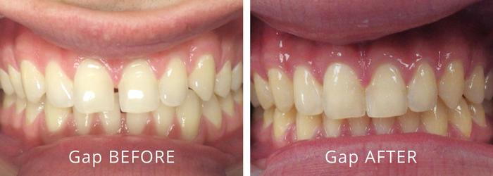 MFD Gallery Gap Teeth