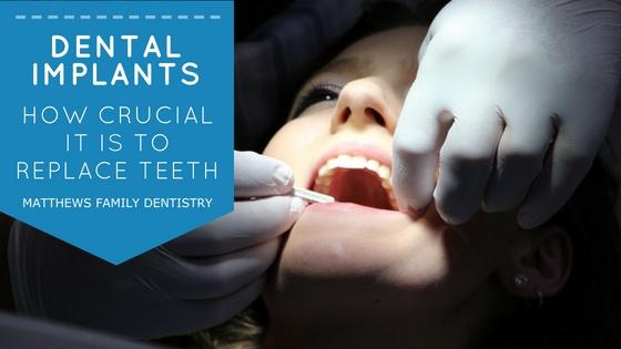 MFD May Blog - dental implants