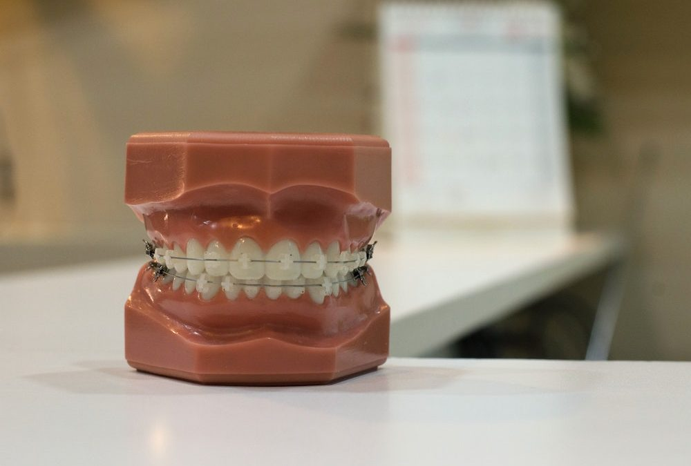 Benefits of Invisalign over Braces