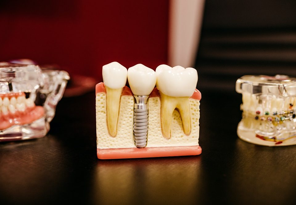 Dental-Implants-vs-Dental-Bridges-Which-Is-Better-for-Me