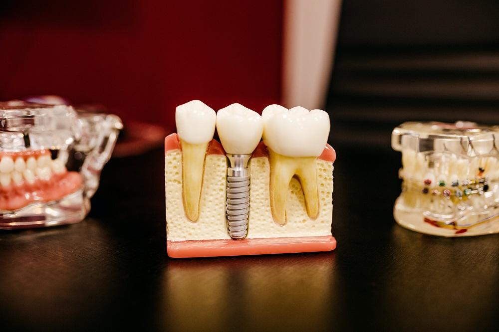Dental-Implants-vs-Dental-Bridges-Which-Is-Better-for-Me